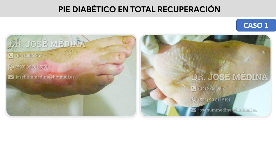 clinica del pie guayaquil